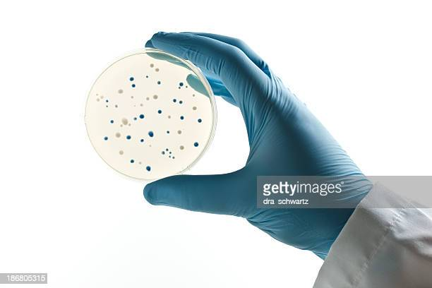 Scientist holding a Petri dish with bacterial clones