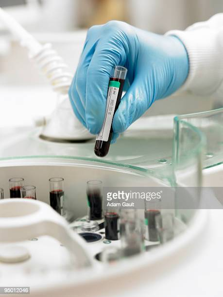 Scientist inserting test tube into centrifuge