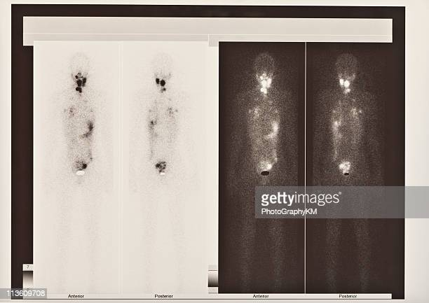 Scintigraphy  scan of thyroid and lung cancer