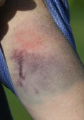 Scotland's Mike Miller shows his bruises after being hit by a ball during the second round of the DGM Barbados Open at the Royal Westmoreland Resort...