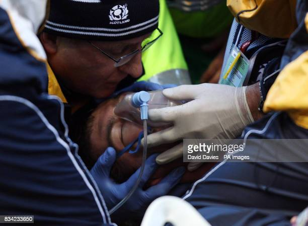 Scotland's Rory Lamont recieves treatment during the RBS 6 Nations match at Murrayfield Edinburgh