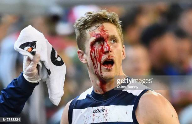 Scott Selwood of the Cats comes off the ground with a cut to the face during the Second Semi Final AFL match between the Geelong Cats and the Sydney...