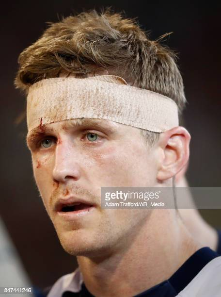 Scott Selwood of the Cats is seen with bandage on his head during the 2017 AFL Second Semi Final match between the Geelong Cats and the Sydney Swans...