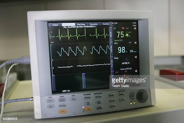 Screen of electrocardiogram (ECG) monitor