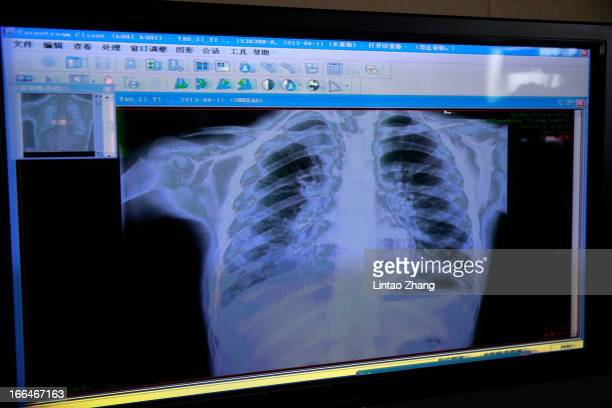 A screen showing a Xray of a sevenyearold girl was has been infected with the H7N9 strain of bird flu at Beijing Ditan Hospital on April 13 2013 in...