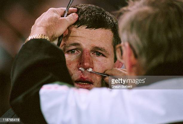 Sean Fitzpatrick of New Zealand is treated for a nosebleed during a Rugby World Cup pool stage match against Ireland at Ellis Park Johannesburg South...