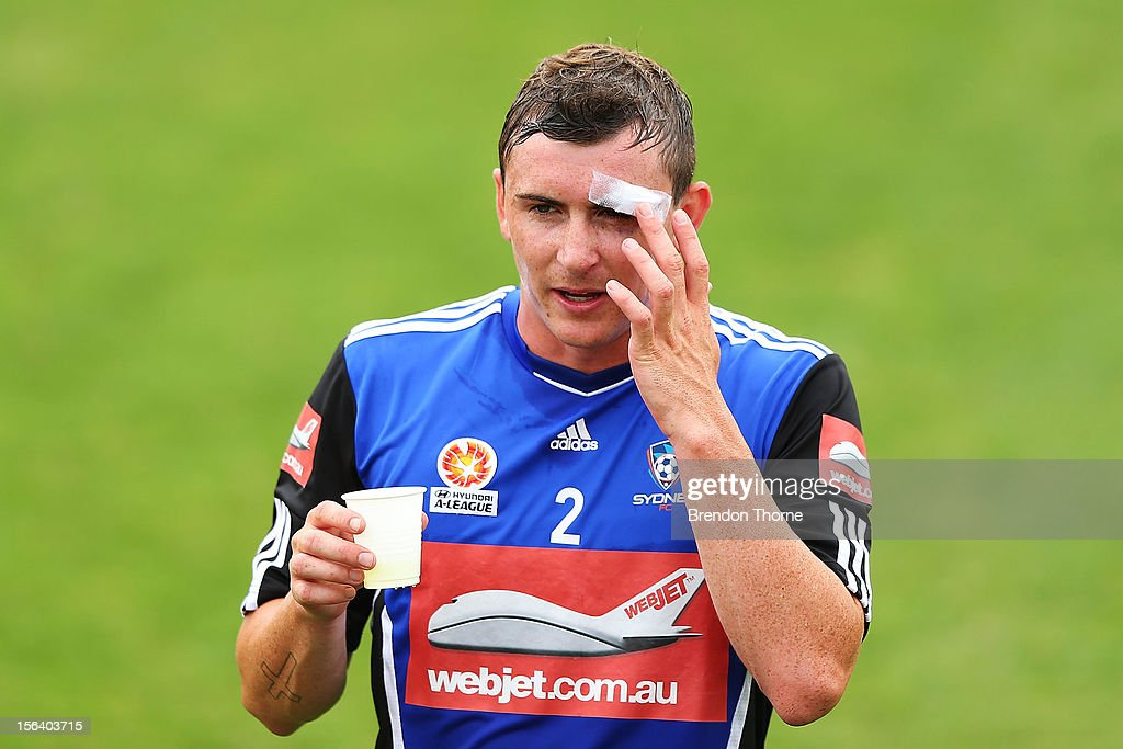 Sebastian Ryall of Sydney touches a head wound suffered from the round 6 A-League match against Melbourne Victory during a Sydney FC A-League training session at Macquarie Uni on November 15, 2012 in Sydney, Australia.