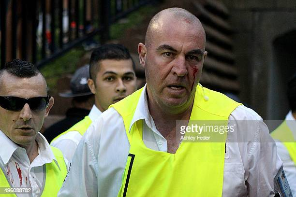A security guard bleeding after an altercation with fans during the round five ALeague match between the Newcastle Jets and the Western Sydney...