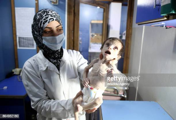 Seher Difda a Syrian baby is seen in doctor's arm as she goes through medical examinations due to malnutrition in deconflict zone of Eastern Ghouta...