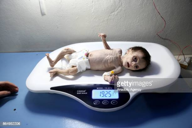Seher Difda a Syrian baby is seen on a bascule as she goes through medical examinations due to malnutrition in deconflict zone of Eastern Ghouta of...