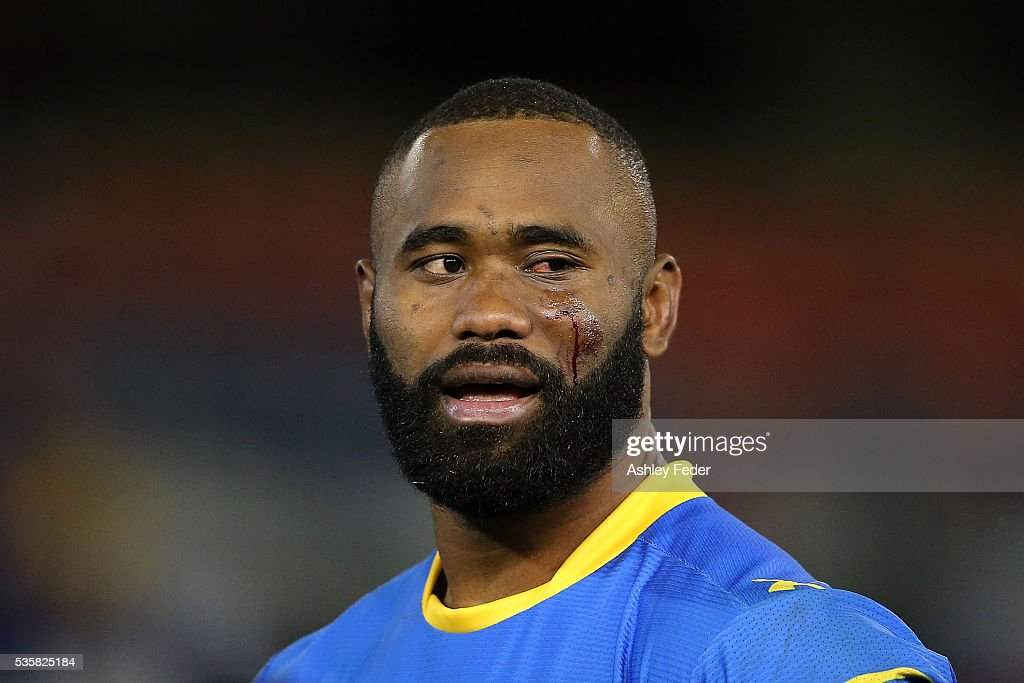 Semi Radrada of the Eels is bleeding during the round 12 NRL match between the Newcastle Knights and the Parramatta Eels at Hunter Stadium on May 30, 2016 in Newcastle, Australia.