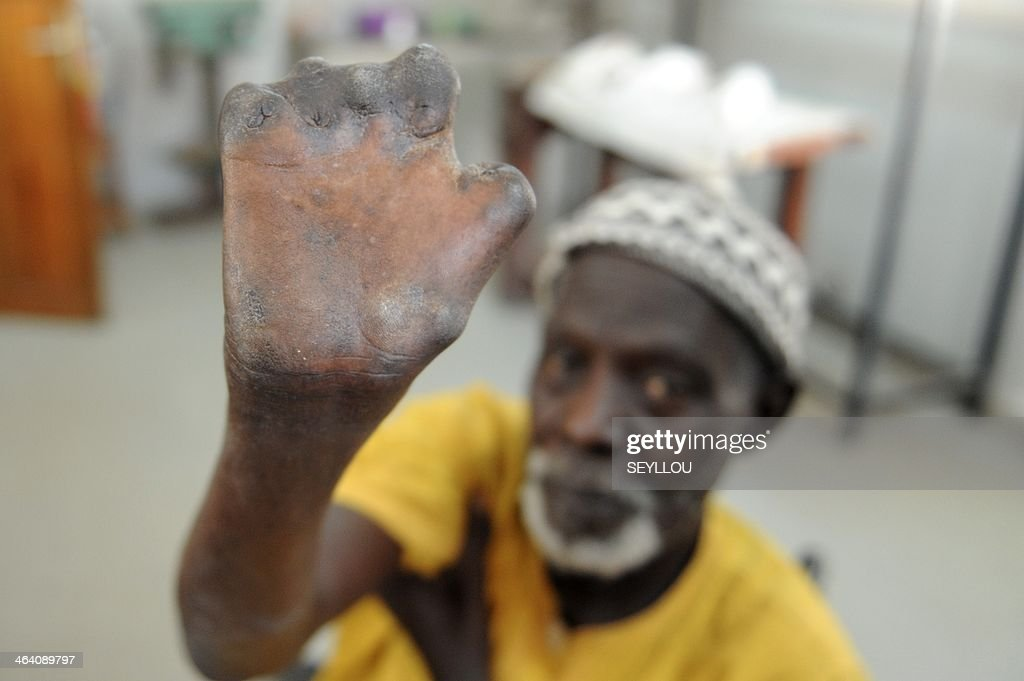 Senegalese patient Ndoffene Diene aged 77 shows his hands after receiving treatment and be cured of leprosis at the humanitarion NGO 'Centre...