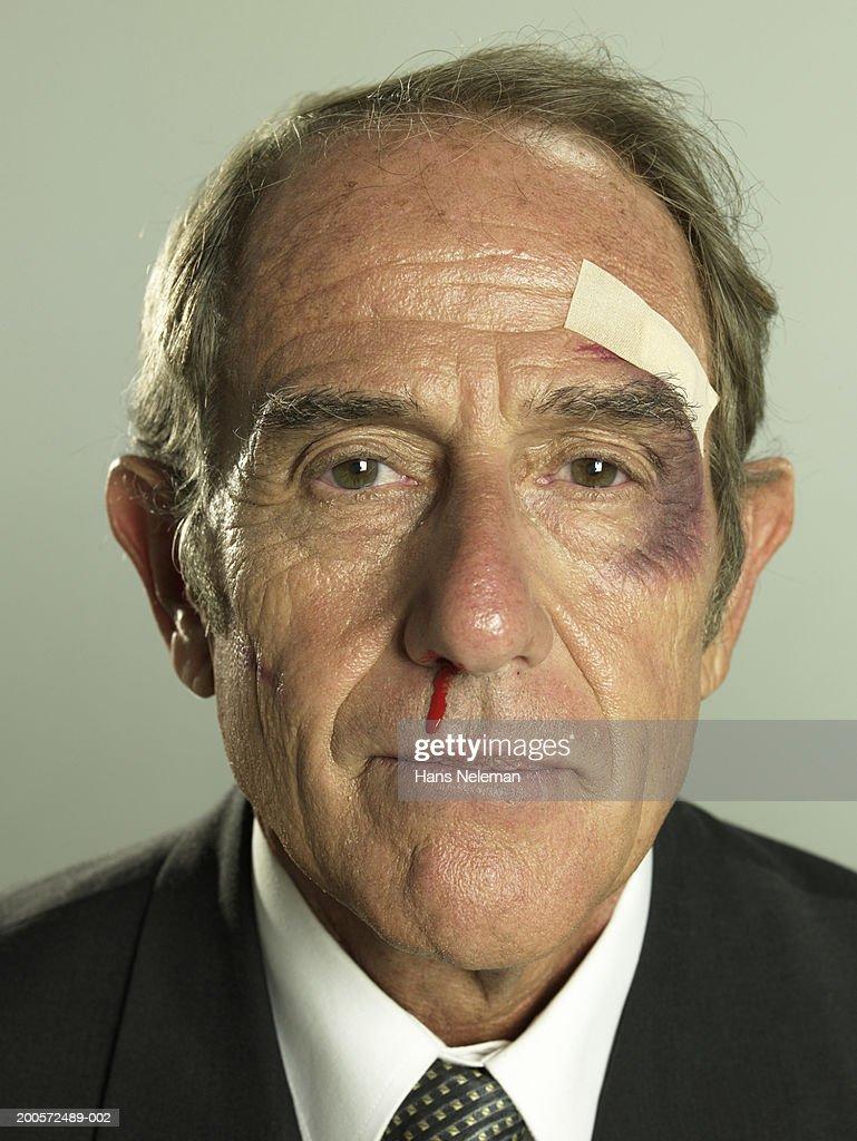 Senior businessman with black eye and bleeding nose, portrait