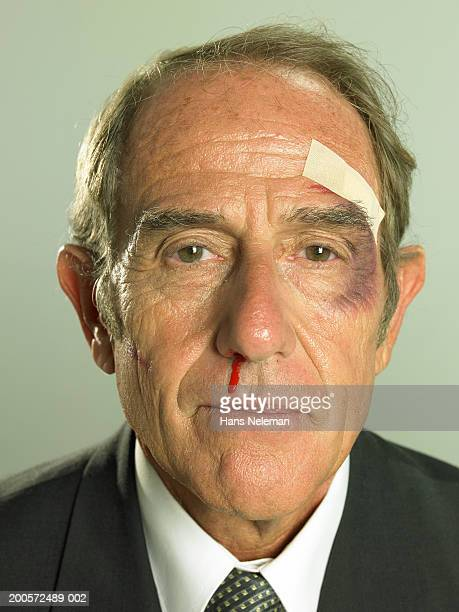 Senior businessman with black eye and bleeding nose, portrait