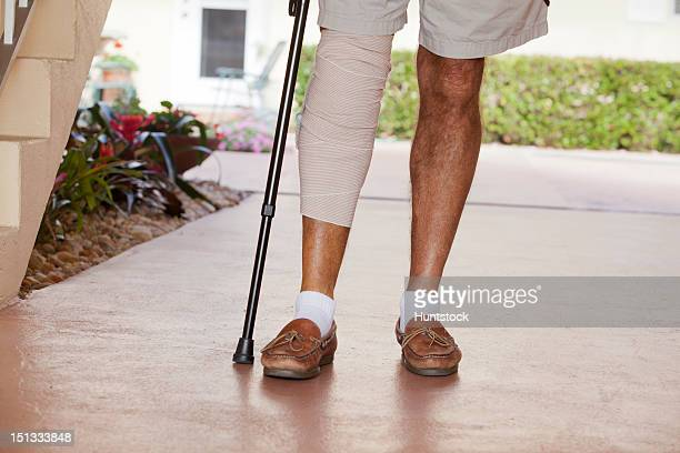 Senior man with bandage on his leg standing with the help of a cane