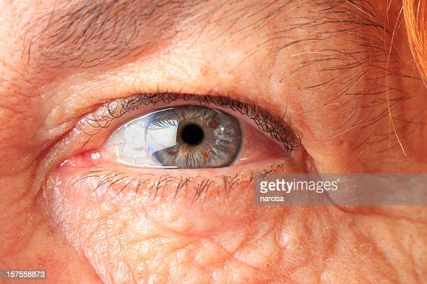 Senior woman eye