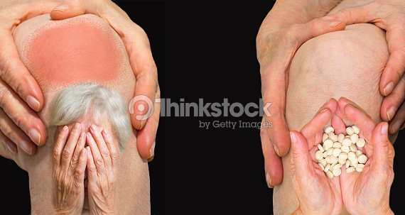 Senior woman holding the knee with pain : Stock Photo