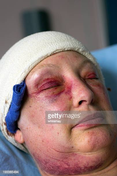 Mujer mayor dos días después de tumor cerebral craneotomía