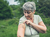 A senior woman in nature is looking at a bruise on her arm