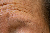 Senior woman's thin eyebrows, Wrinkled forehead, Close up & Macro shot, Selective focus, Body part, Healthcare concept