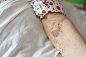 Senior's arm with bruise.