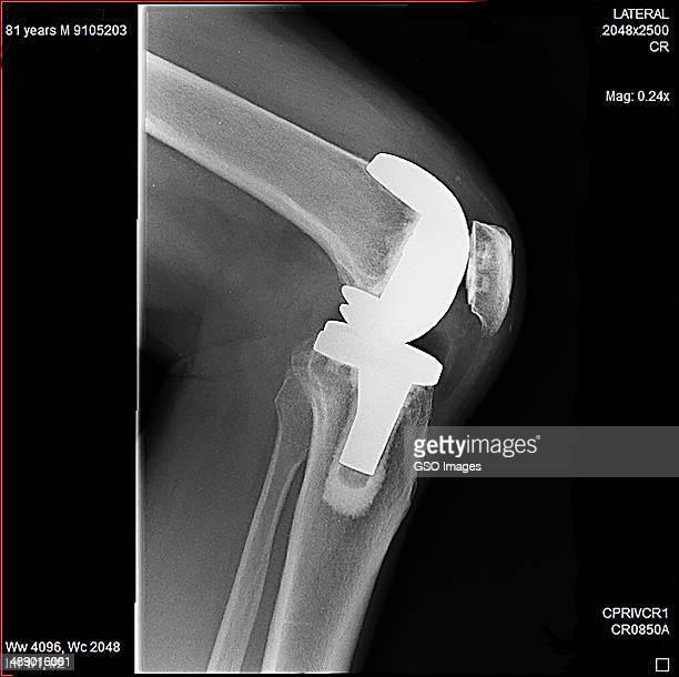 Seniors knee replacement