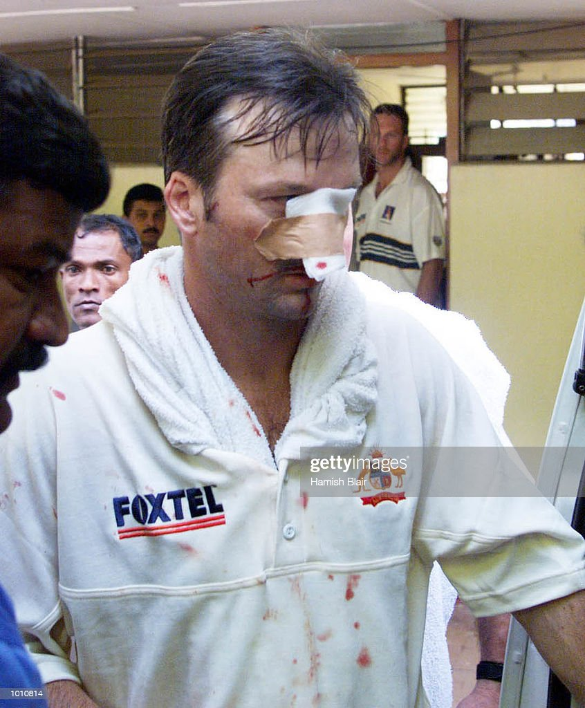 Steve Waugh leaves leaves for hospital after Jason Gillespie and Steve Waugh of Australia collided attempting a catch, during day two of the First Test between Sri Lanka and Australia at Asgiriya Stadium, Kandy, Sri Lanka. Mandatory Credit:Hamish Blair/ALLSPORT