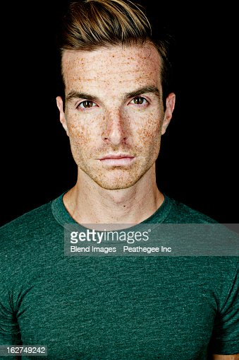 Serious Caucasian man with freckles : Stock Photo