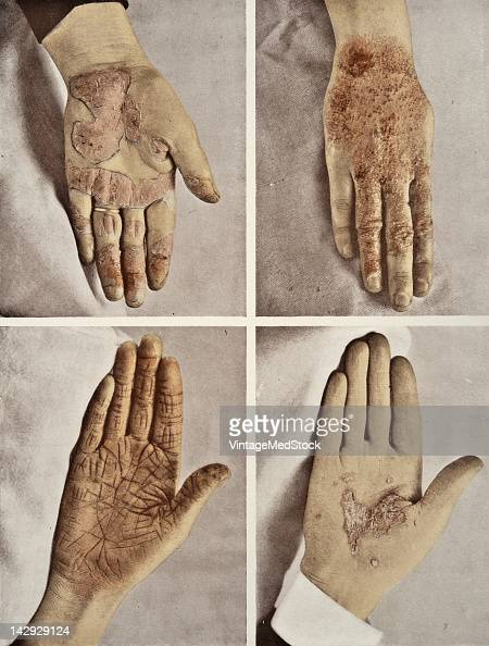 A set of four medical photographs from 'Photographic Atlas of the Diseases of the Skin' illustrate cases of various skin diseases 1903