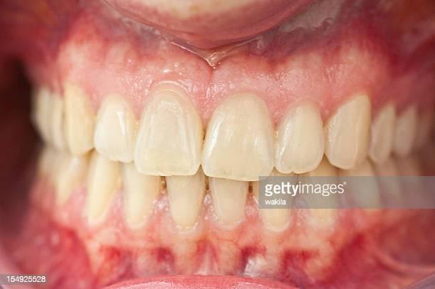 Satz von gesunden Menschliche Zahnersatz-Cleo mit Zahnfleisch