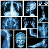 Set of x-ray multiple part of human . Skeletal system