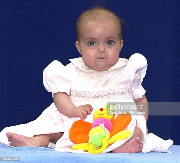 Sevenmonthold Freya Stratford pictured at the Diana Princess of Wales Children's Hospital in Birmingham before going home to Penrith Cumbria after a...