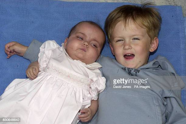 Sevenmonthold Freya Stratford pictured with her brother Adam at the Diana Princess of Wales Children's Hospital in Birmingham before going home to...