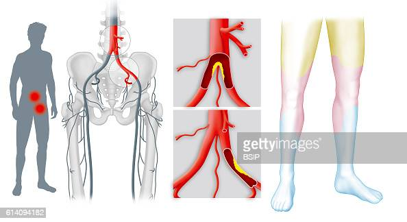 peripheral artery disease outline The score curriculum outline for vascular surgery is a list of vascular surgery patient care duplex evaluation of occlusive disease • peripheral arterial.