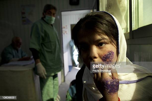 KABUL AFGHANISTAN OCTOBER 26 Shafiqa waits for treatment at a free specialized clinic for leishmaniasis supported by World Health Organization...