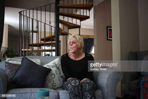 Shaninlea Visser during an interview on September 28 2017 in Johannesburg South Africa Visser lost her hands legs and parts of her face after...