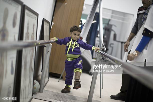 Shareef alNamla wounded during the 50 days of conflict between Israel and Hamas last summer practices walking with his prosthetic leg at Gaza's...