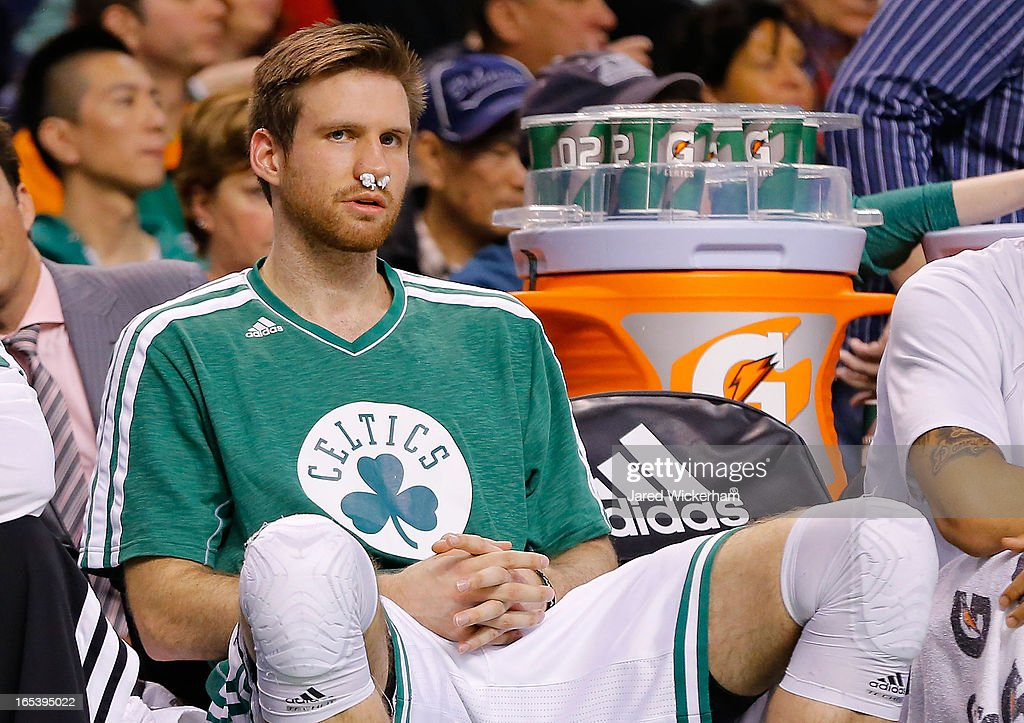 Shavlik Randolph #42 of the Boston Celtics sits on the bench with his nose stuffed with gauze during the game against the Detroit Pistons on April 3, 2013 at TD Garden in Boston, Massachusetts.