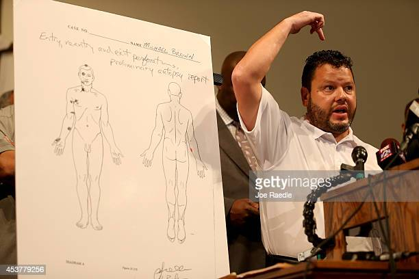 Shawn Parcells a forensic pathologist who assisted in the autopsy of Michael Brown points to where a bullet hit the teenager as he stands near an...