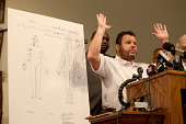 Shawn Parcells a forensic pathologist who assisted in the autopsy of Michael Brown stands near an autopsy diagram showing where the gun shots hit...