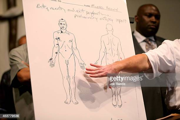 Shawn Parcells a forensic pathologist who assisted in the autopsy of Michael Brown points at an autopsy diagram showing where the gun shots hit...