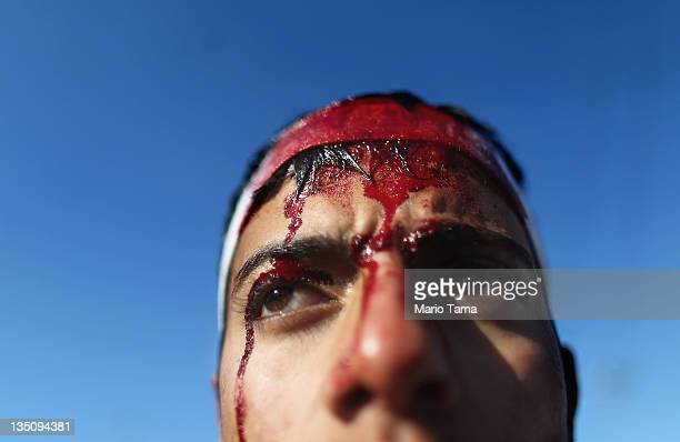 Shi'ite worshiper bleeds after cutting his scalp in a ritual display of mourning during an Ashura commemoration ceremony outside Kadhimiya shrine on...
