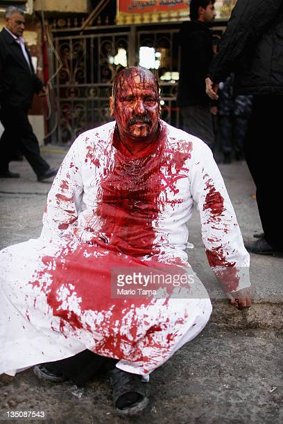 A Shi'ite worshiper rests on a sidewalk after cutting his scalp in a ritual display of mourning during an Ashura commemoration ceremony outside...