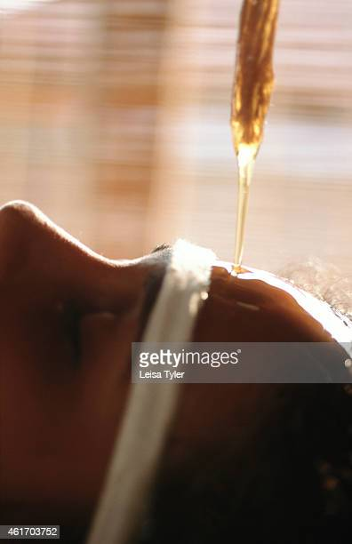 Shirodhara an ayurvedic application where warm medicated oil is poured over the head in a rhythmic stream used to alleviate insomnia skin disorders...