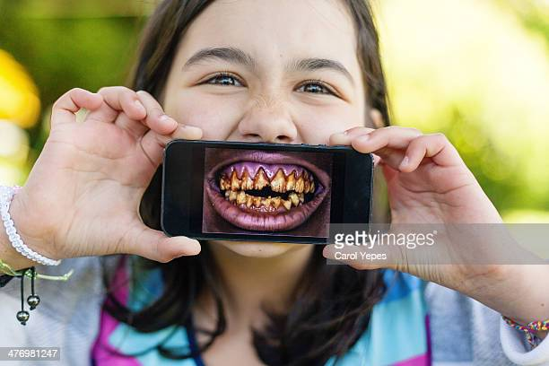Show me the teeth
