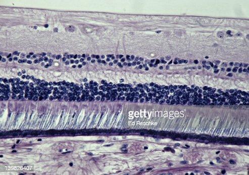 Retina 100x Shows Photoreceptor Cells Similar To 13934 ...