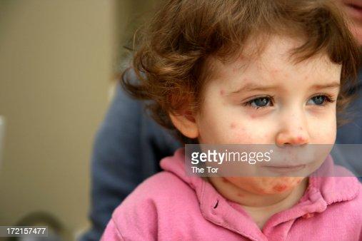 Sick child face
