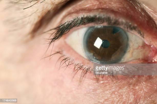 Malade des yeux
