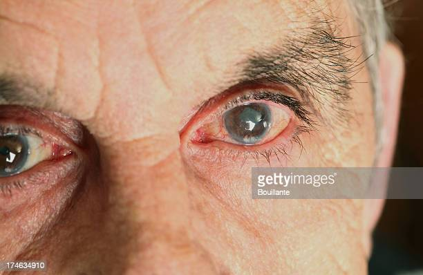 Male gli occhi