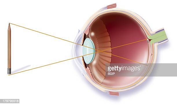 Sight Anatomy Of The Eye And The Mechanism Of Vision The Reflection Of The Image A Pencil Is Projected On The Retina